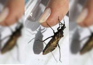 kissing bug cause death- India Tv