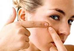 tips to avoid acne rashes in summer