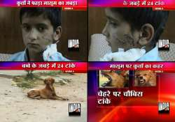 shimla boy gets 24 stitches after stray dogs attack