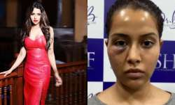 Tamil actress Raiza Wilson's face surgery goes wrong, shares photo blaming dermatologist